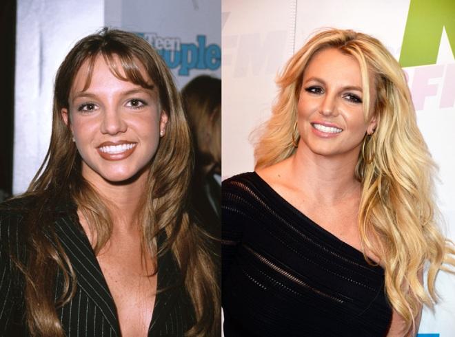 Chirurgia estetica VIP – Britney Spears
