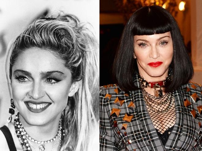 Chirurgia estetica VIP – Madonna