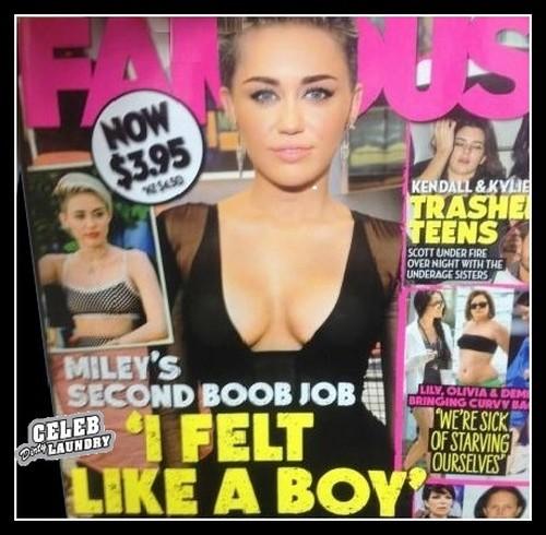 Chirurgia estetica VIP – Miley Cyrus