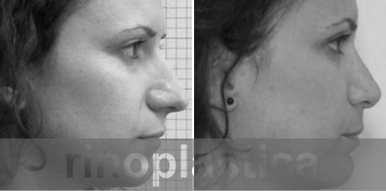 Rinoplastica del naso aquilino femminile